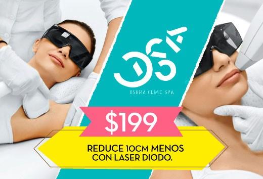 Laser Diodo por sólo $199