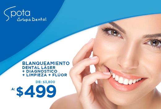 Blanqueamiento dental láser + diagnostico + limpieza + flúor