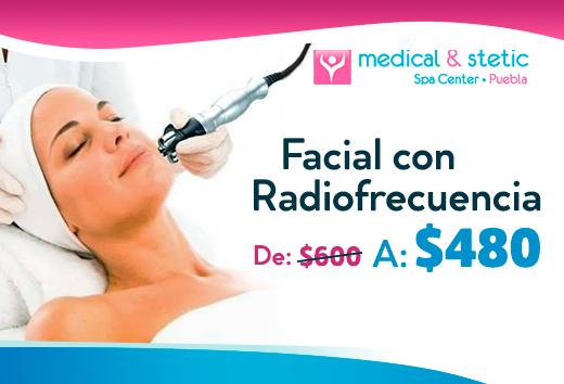 Facial con radiofrecuencia de $600 a $480